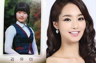 Yang Mi Before And After Plastic Surgery 1