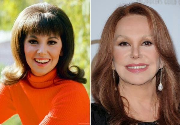 Marlo Thomas Before And After Plastic Surgery photo - 1