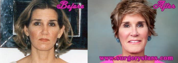 Mary Matalin Plastic Surgery Before And After photo - 1