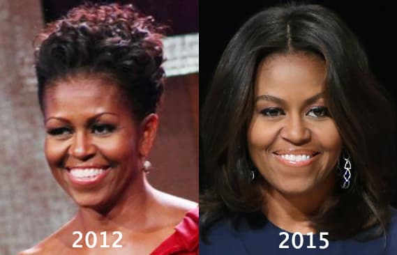 Barack Obama Before And After Plastic Surgery photo - 1