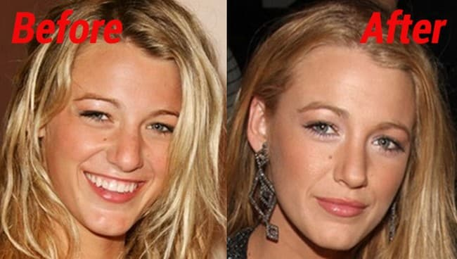 Blake Lively Before And After Plastic Surgery photo - 1