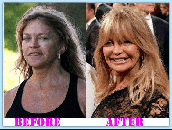 Goldie Hawn Before And After Plastic Surgery photo - 1