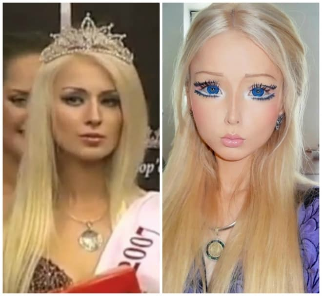 Human Barbie Plastic Surgery Before And After photo - 1