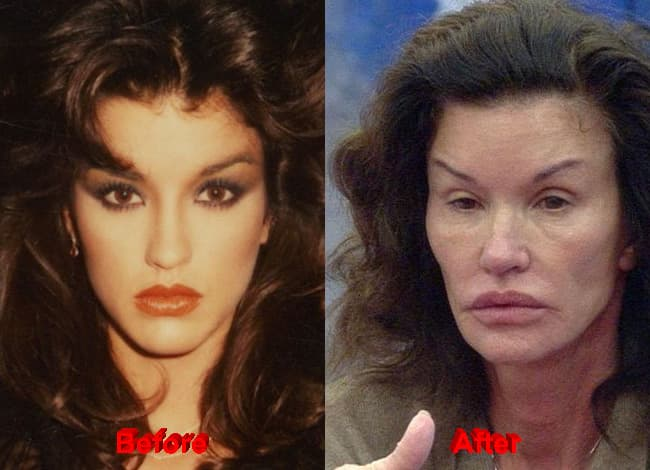 Janice Dickinson Plastic Surgery Before After photo - 1