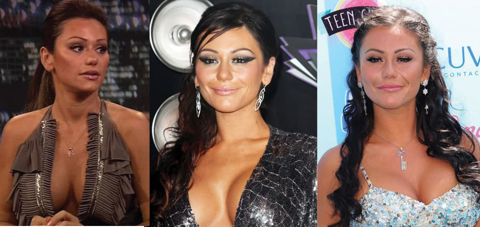 Jersey Shore Plastic Surgery Before And After photo - 1