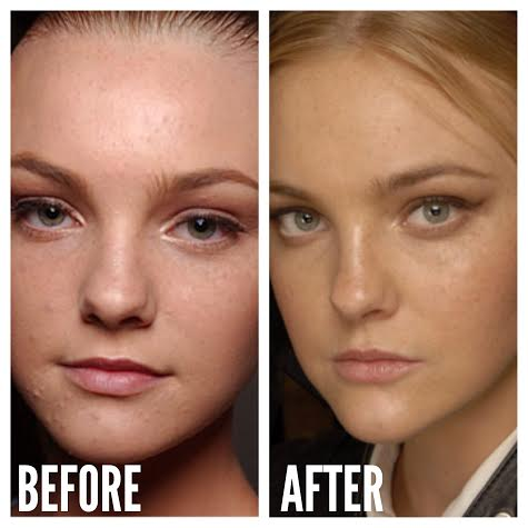 Plastic Surgery Before And After Side Effects photo - 1