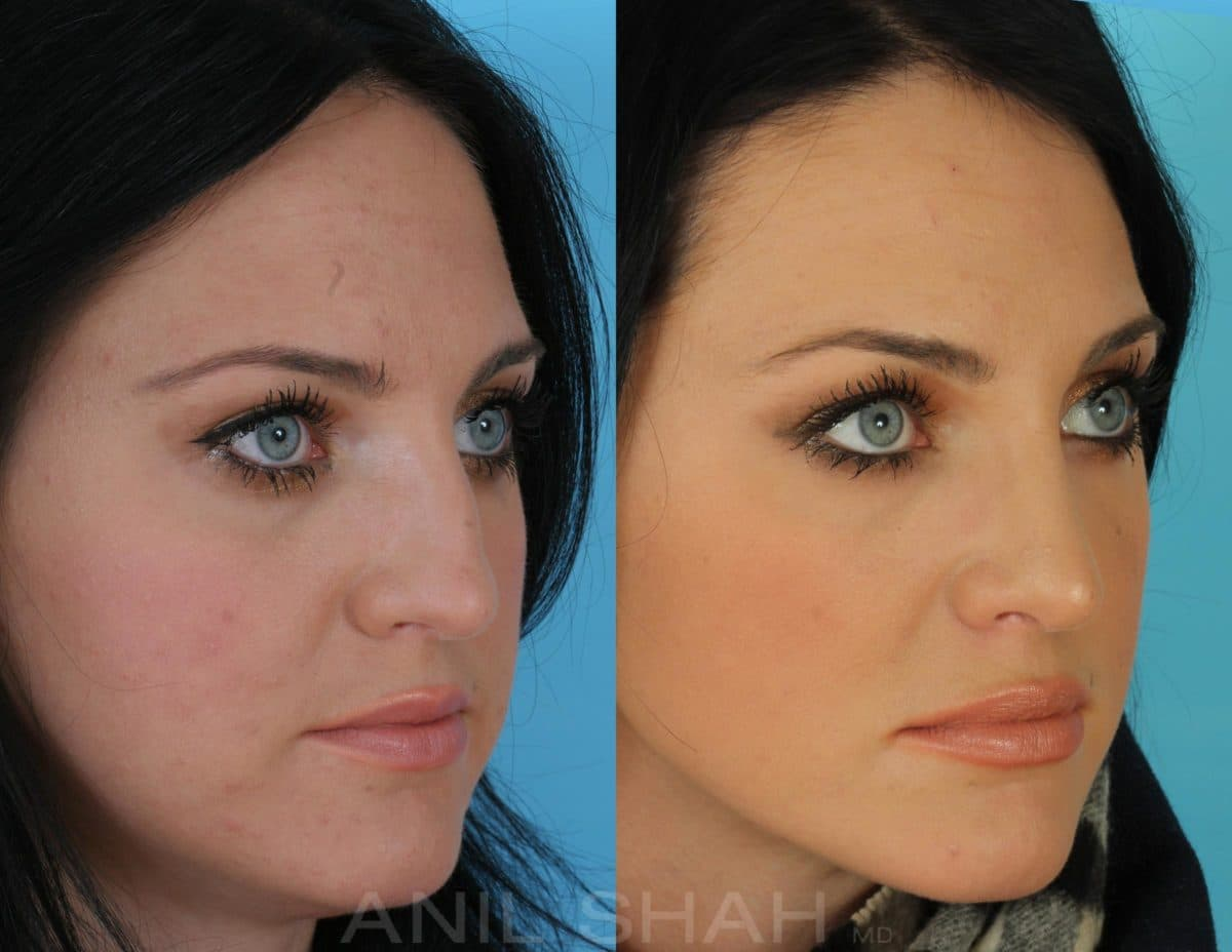 Plastic Surgery Facial Scars Before And After photo - 1