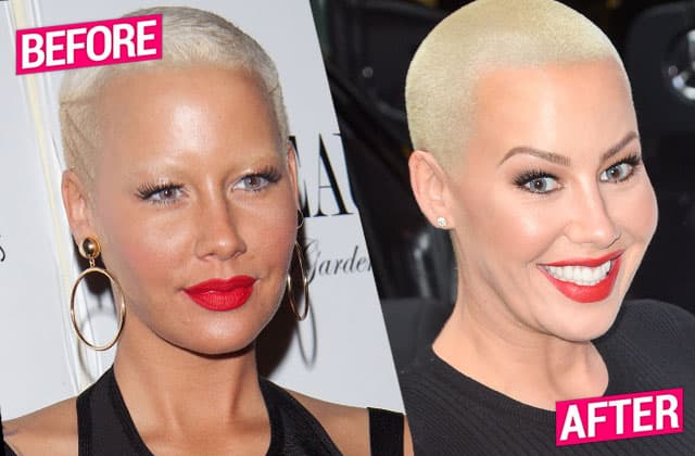 Rose Mcgowan Plastic Surgery Before And After photo - 1