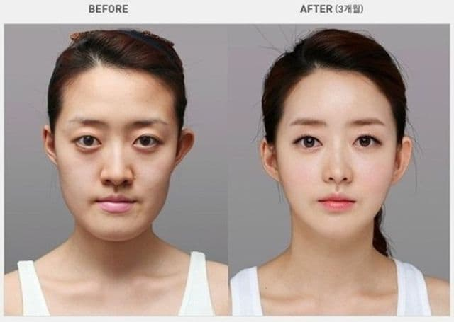 South Korean Plastic Surgery Before And After photo - 1