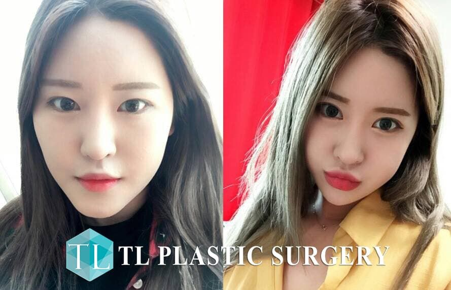 Plastic Surgery In Korea Before And After 1