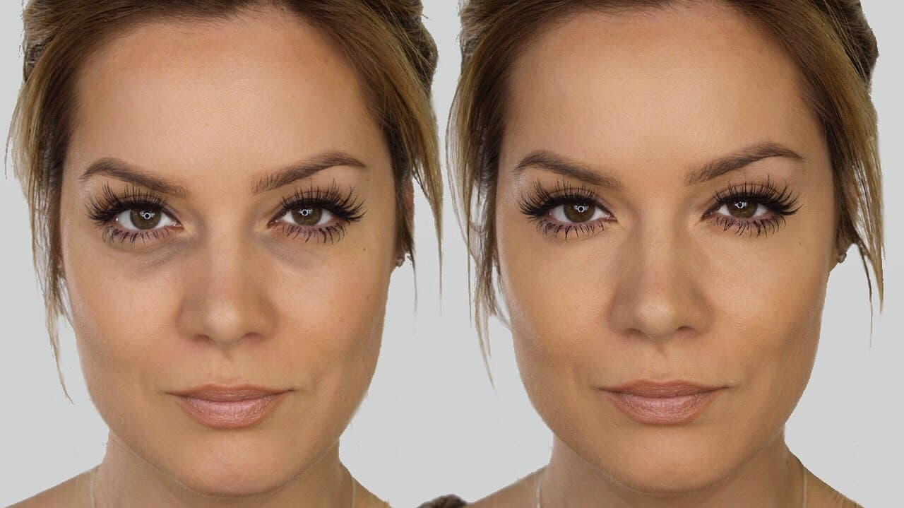 Dark Circles Plastic Surgery Before After 1