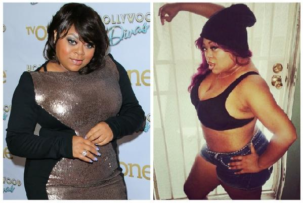 Fantasia Plastic Surgery Before And After 1