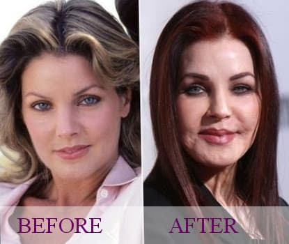 Lana Del Rey Plastic Surgery Before After 1