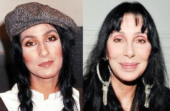 Bad Plastic Surgery Before And After 2012 1