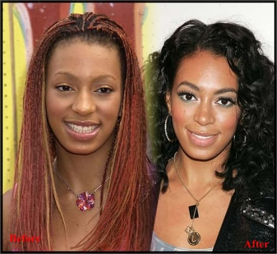 Fantasia Before And After Plastic Surgery 1