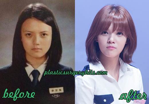 Seolhyun Before And After Plastic Surgery 1