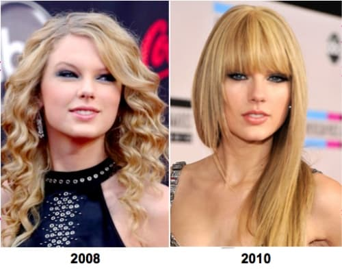 Taylor Swift Plastic Surgery Before After 1