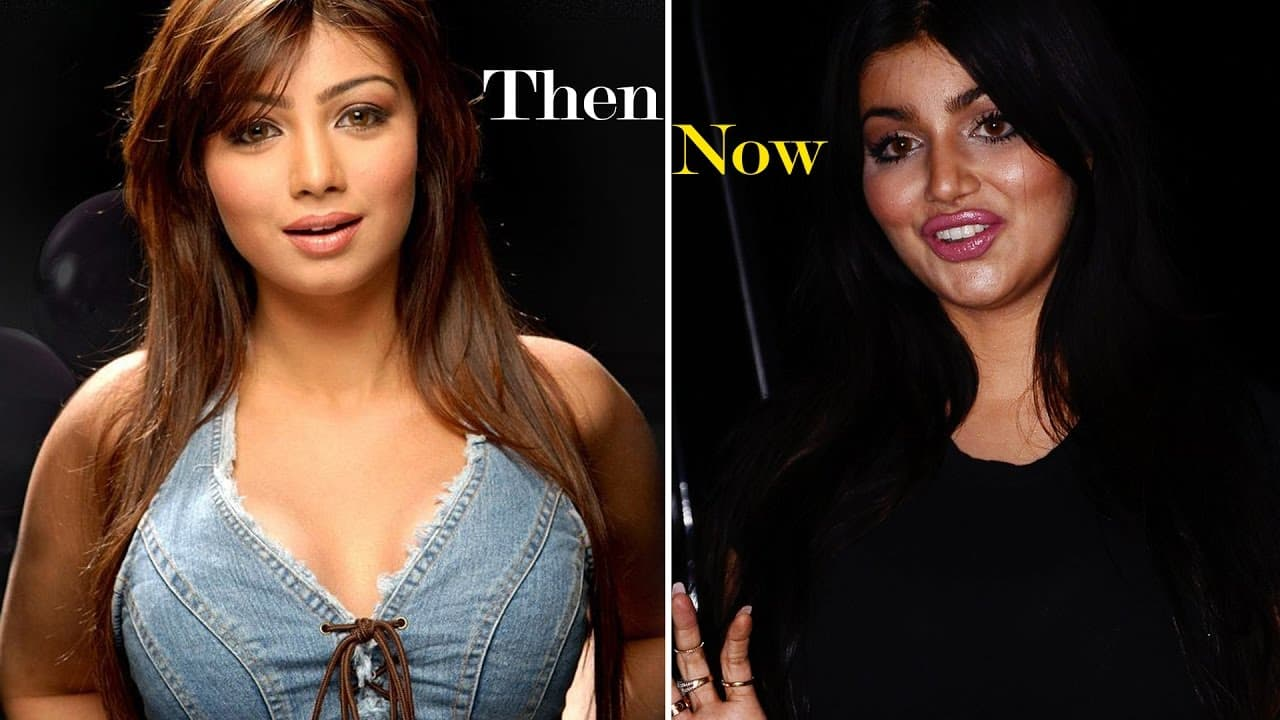 Ayesha Takia Before After Plastic Surgery 1