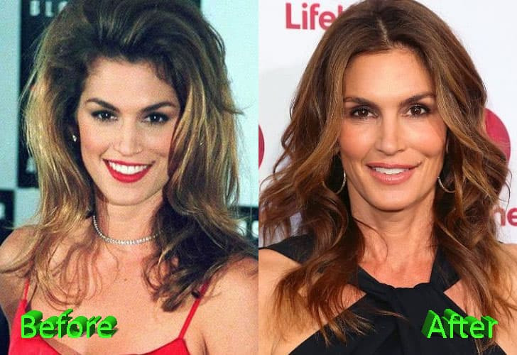 Crawford Plastic Surgery Before And After 1
