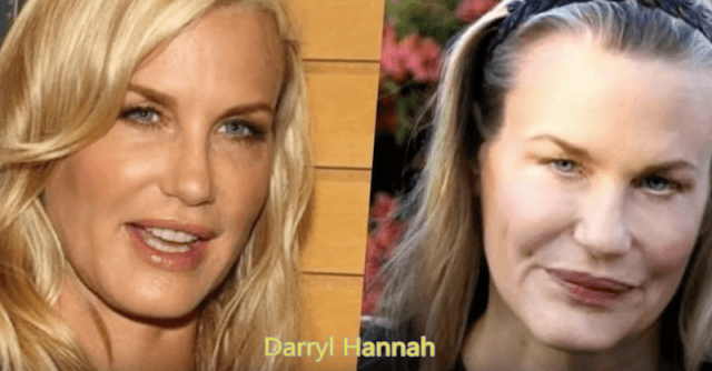Craziest Before And After Plastic Surgery 1