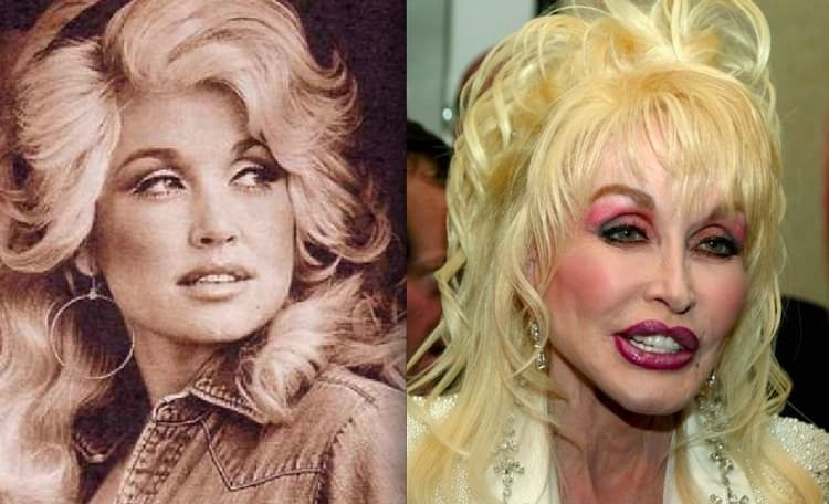 Dolly Parton Plastic Surgery Before After 1