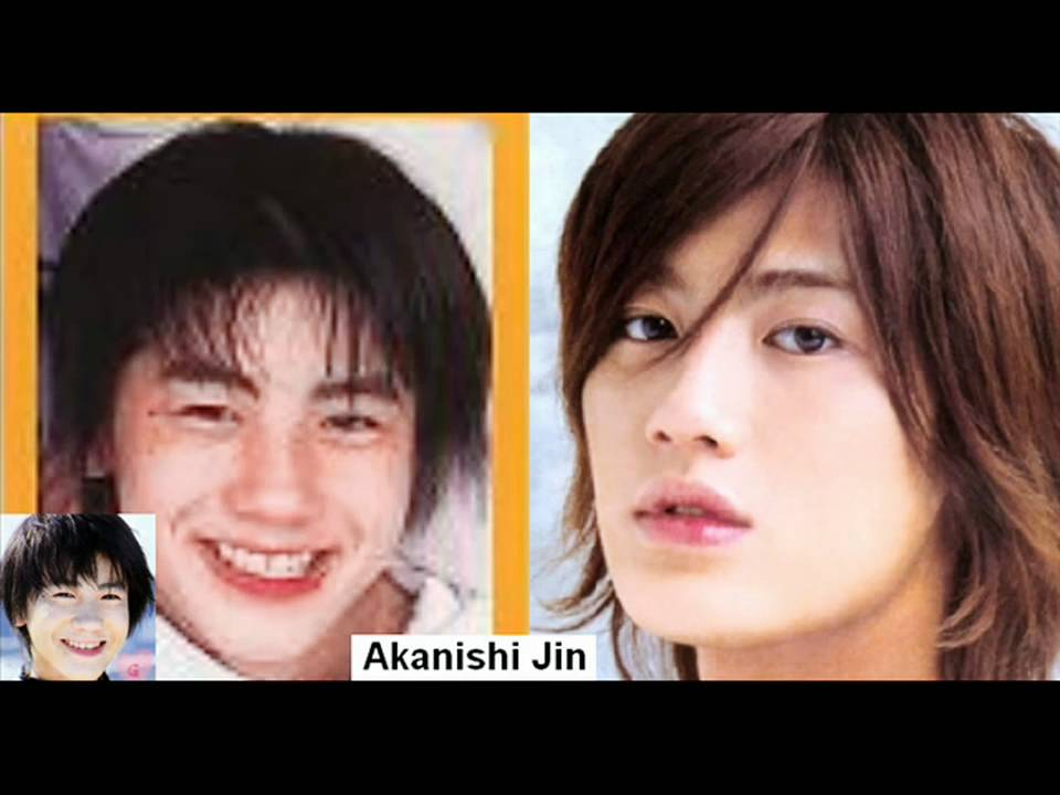 Nichkhun Plastic Surgery Before And After 1