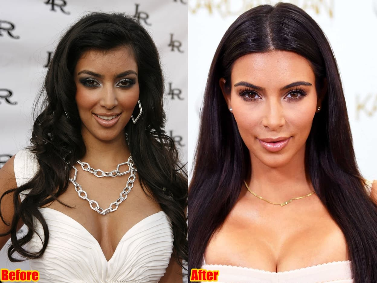 Plastic Surgery Chic Images Before After 1
