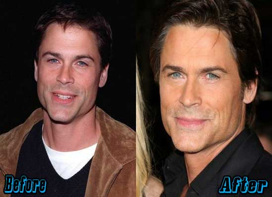 Rob Lowe Before And After Plastic Surgery 1