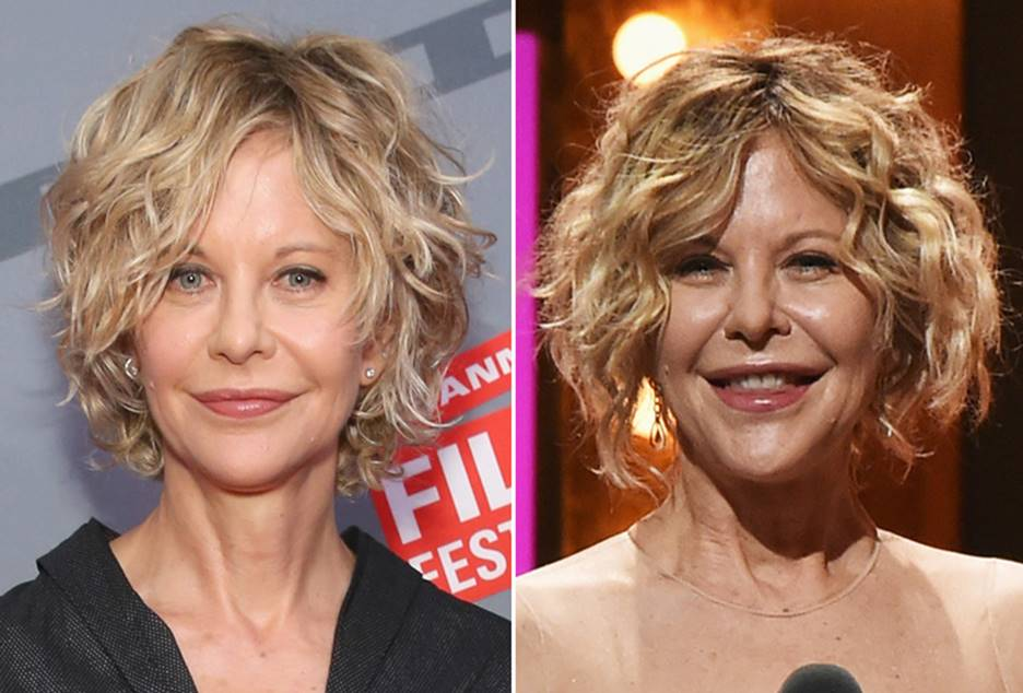 Roseanne Before And After Plastic Surgery 1