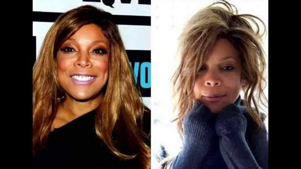 Wendy Williams Before Her Plastic Surgery 1