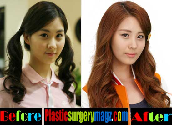 All Snsd Before And After Plastic Surgery 1
