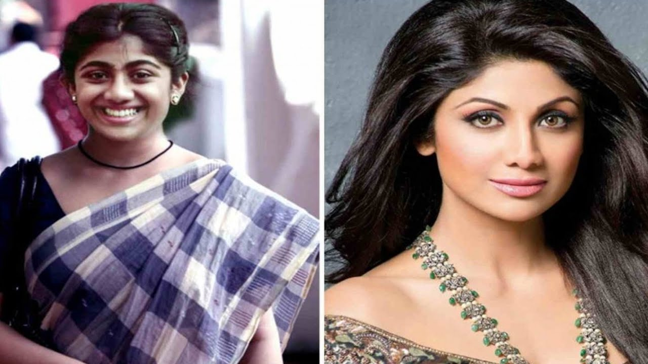 Bollywood Actress Before Plastic Surgery 1