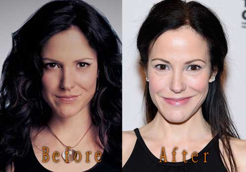 Mary Louise Parker Before Plastic Surgery 1