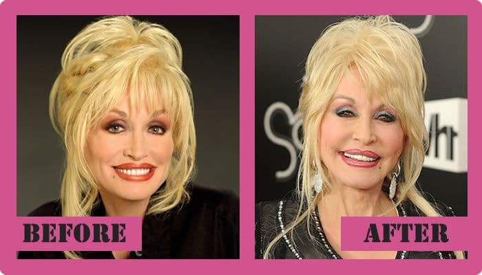 Raquel Welch Plastic Surgery Before After 1