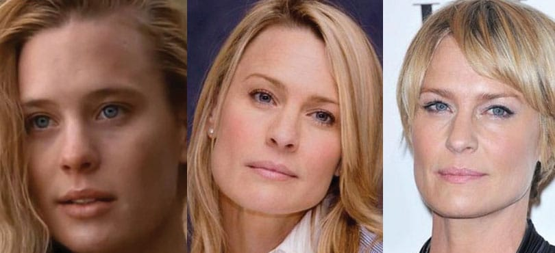 Robin Wright Plastic Surgery Before After 1