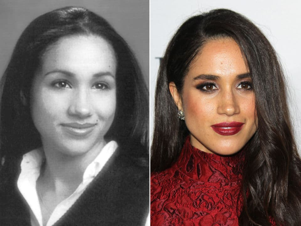 Meghan Markle Plastic Surgery Before And After photo - 1