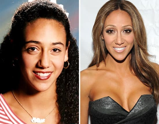 Melissa Gorga Before And After Plastic Surgery photo - 1