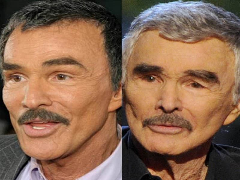 Burt Reynolds Plastic Surgery Before And After photo - 1