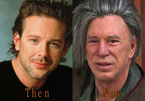 Bad Hollywood Plastic Surgery Before And After photo - 1