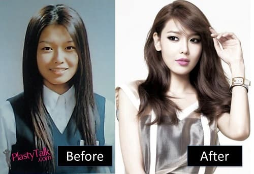 Choi Sooyoung Plastic Surgery Before And After photo - 1