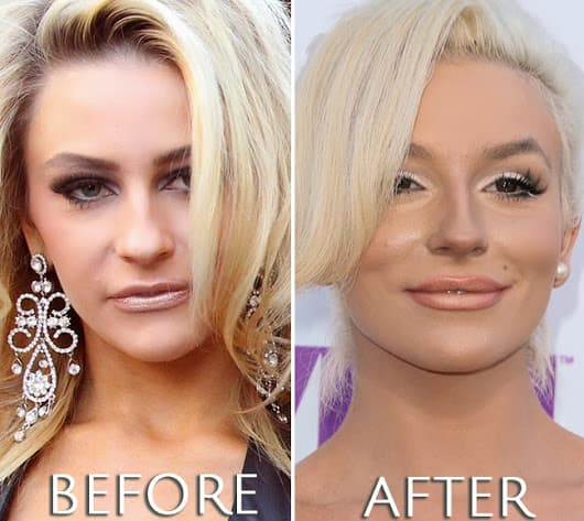 Courtney Kerr Plastic Surgery Before And After photo - 1