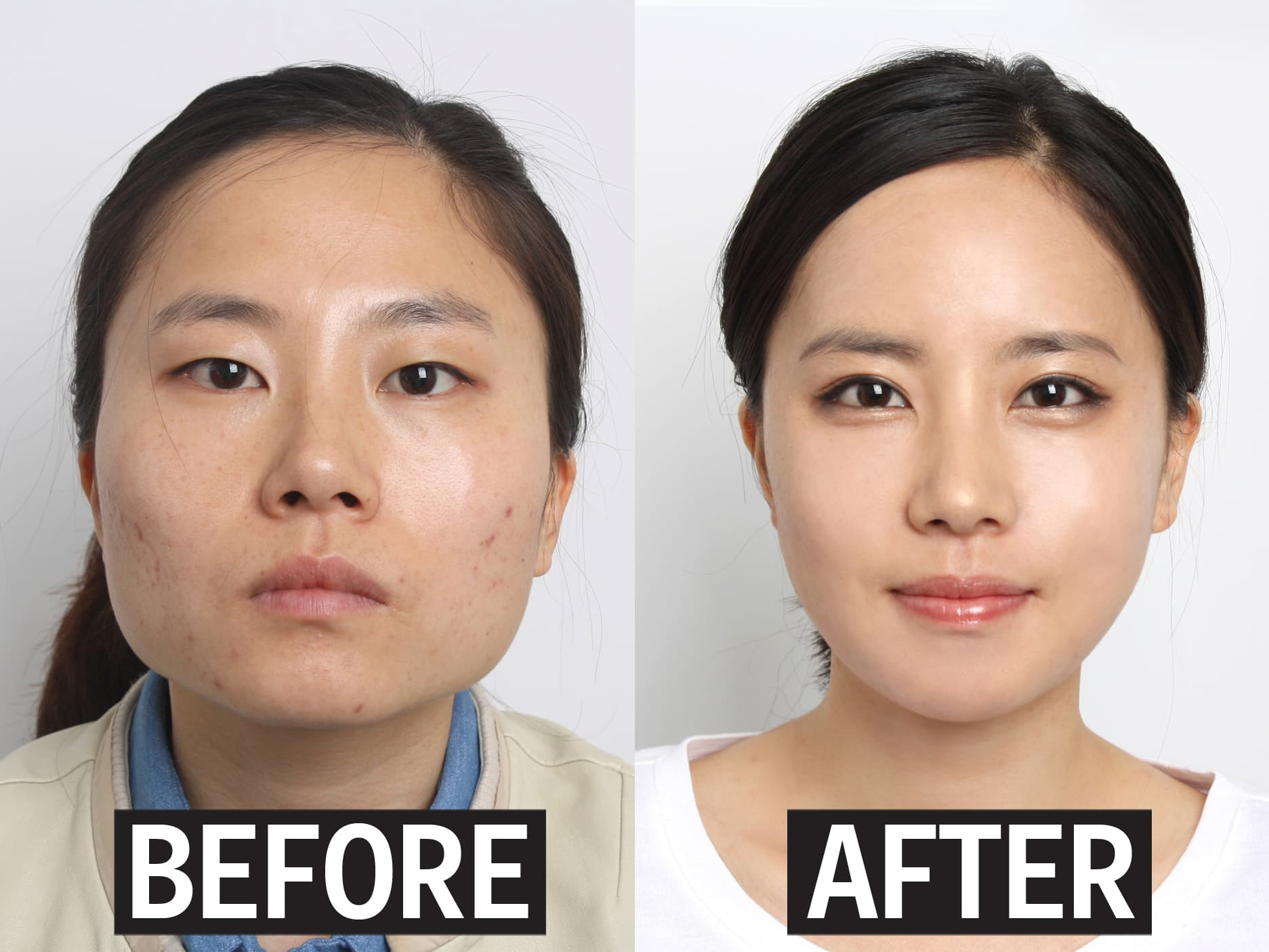 Crazy Before And After Korean Plastic Surgery photo - 1