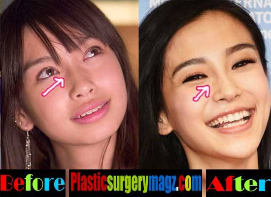 Hyuna Without Plastic Surgery Before And After photo - 1