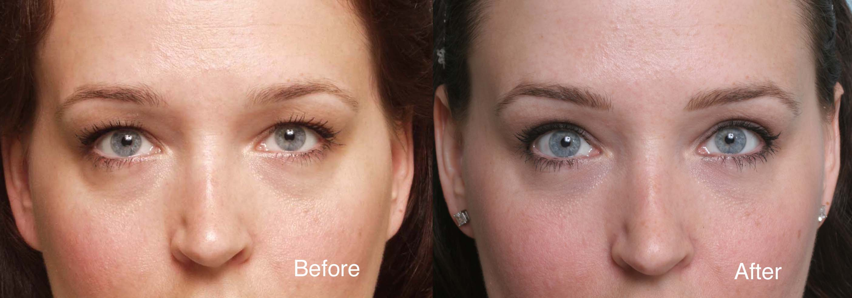 Hollow Eyes Post Plastic Surgery Before After photo - 1
