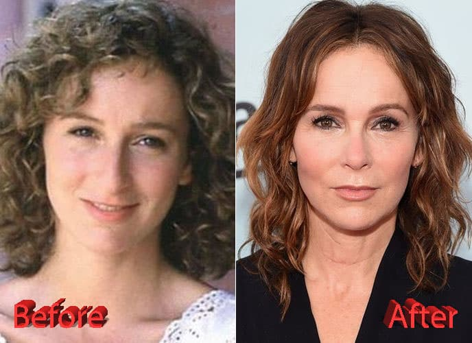 Jennifer Gray Plastic Surgery Before And After photo - 1