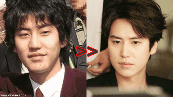 Korean Drama Plastic Surgery Before And After photo - 1