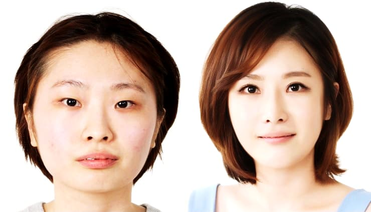 Korean Facial Plastic Surgery Before And After photo - 1
