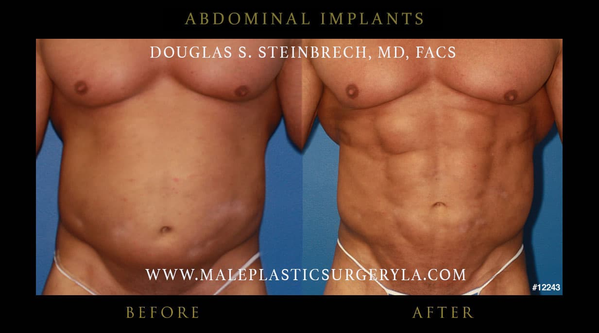 Abdominal Plastic Surgery Before And After 1