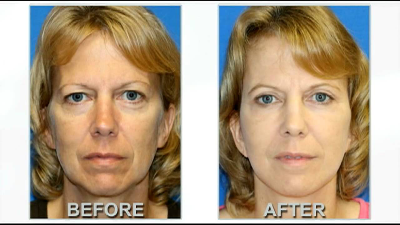 Eyelid Plastic Surgery Before After Photos 1