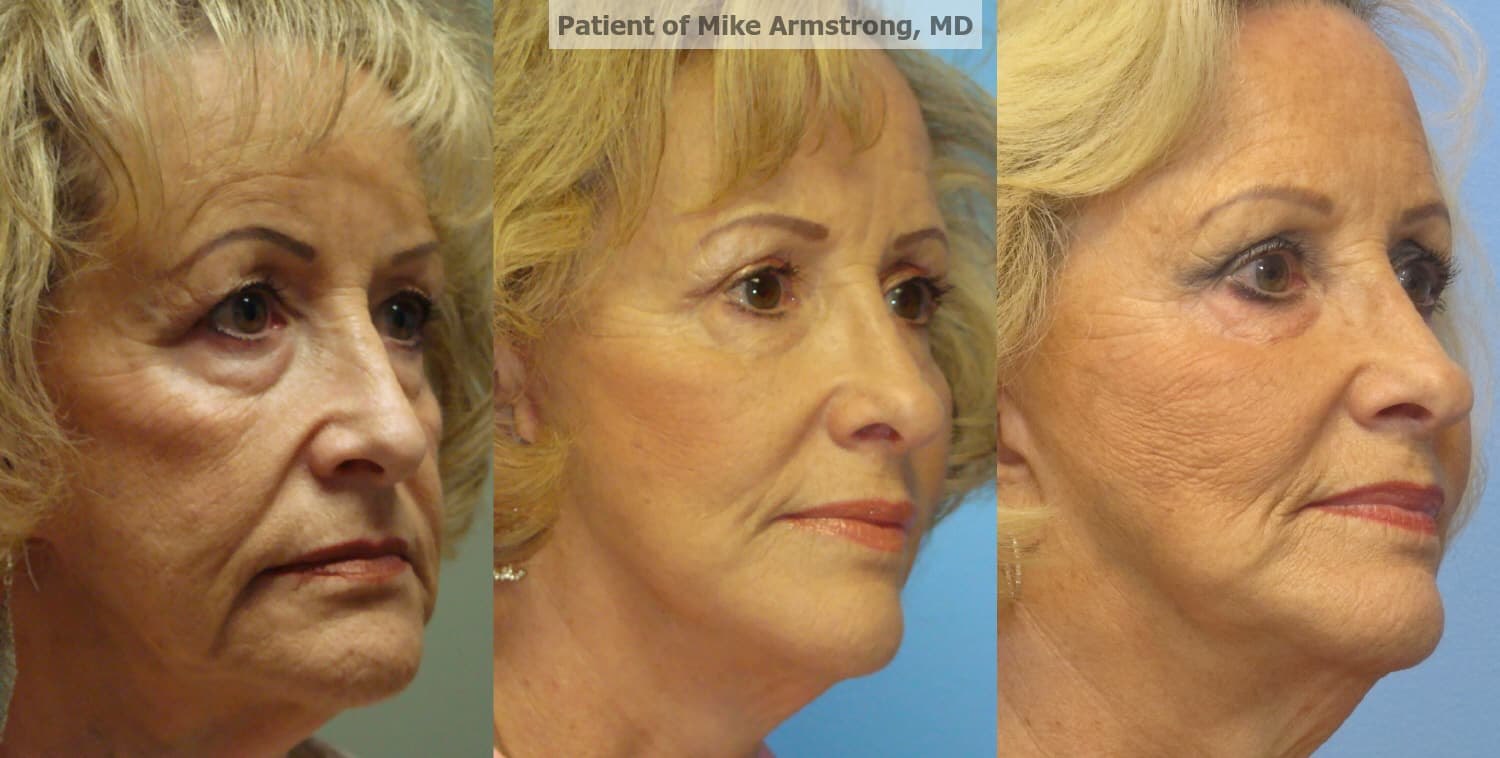 Plastic Surgery For Scars Before And After 1